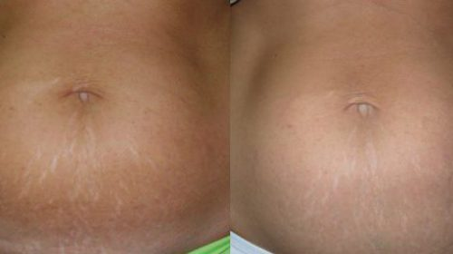 After 3 Stretch Mark Removal Treatments