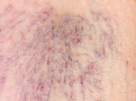 close-up of varicose veins dermis with