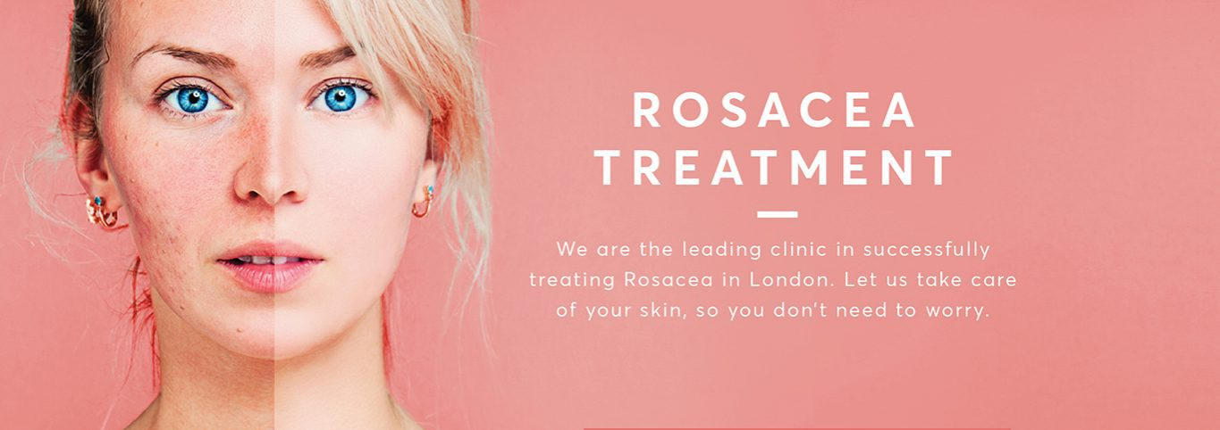 Rosacea treatment feature graphic