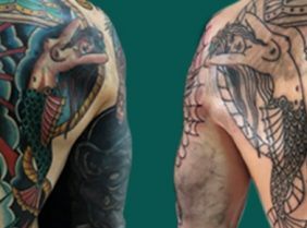 Tattoo Removal London Mobile Graphic