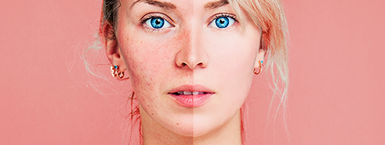 Lady with half face rosacea and half face without Rosacea