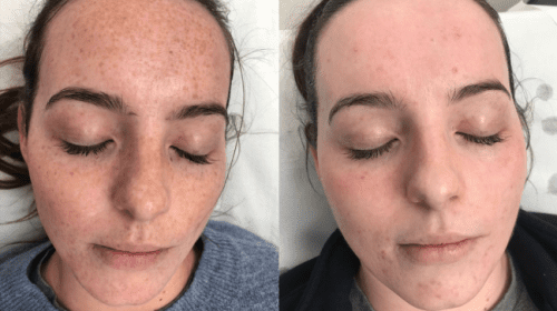 After 3 Freckle Removal PicoSure Treatments