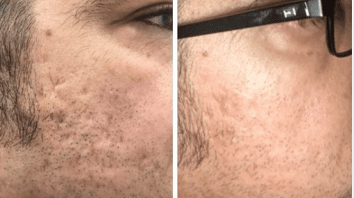 4 Icon Acne Scar treatments