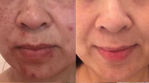 Dermapen acne scar pigmentation treatment