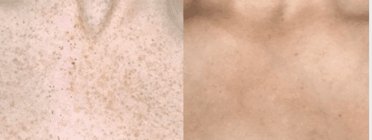 After 4 Freckle Removal Picosure Treatments