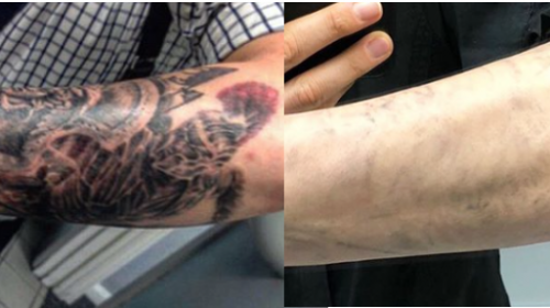 After 5 Laser Tattoo Removal PicoWay Treatments
