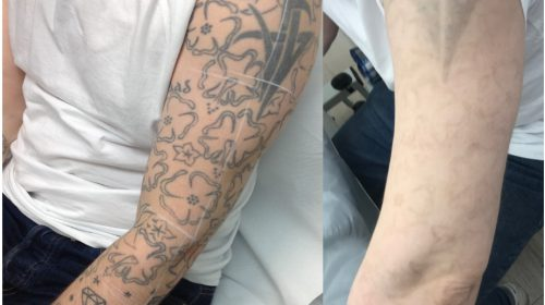 Large Laser Tattoo Removal