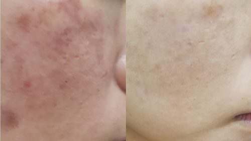 Asian ladies before and after a PicoSure Skin Pigmentation treatment.