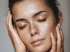 A lady displaying lots of freckles on her face on Pulse Light Clinics homepage