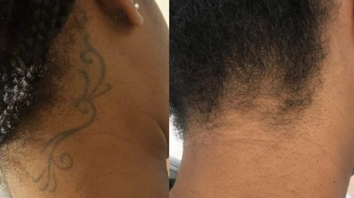 After 5 Laser Tattoo PicoWay Treatments