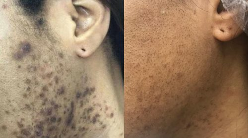 Ingrown hair removal before and after. This was accomplished with laser hair removal