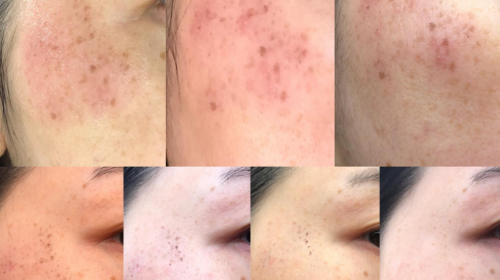 After 4 PicoSure Pigmentation Treatments