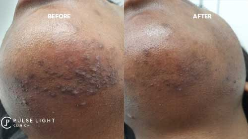 ingrown laser hair removal chin
