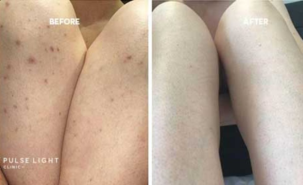Ingrown hairs removal before and after