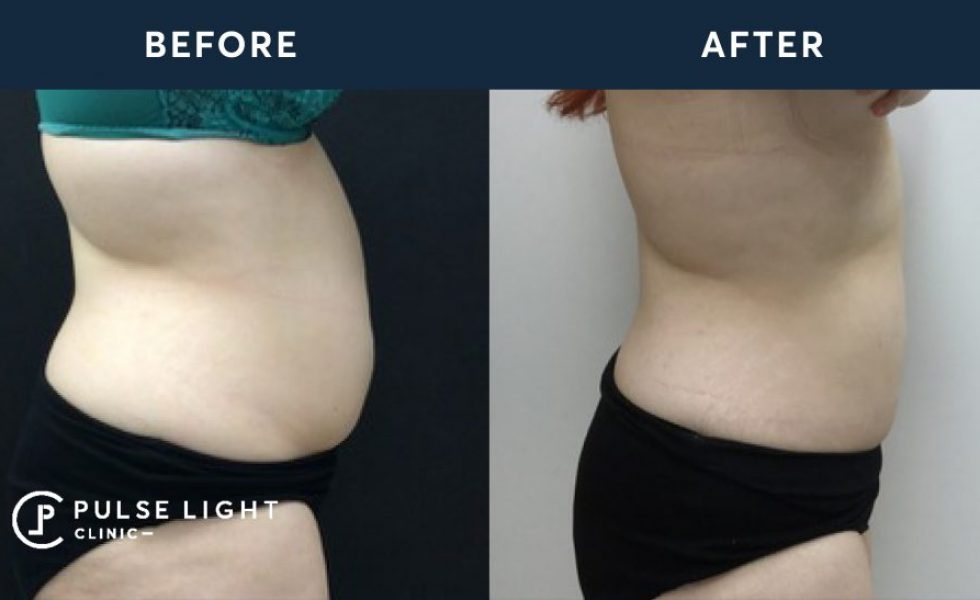 CoolSculpting Before and After - Abdomen treatment