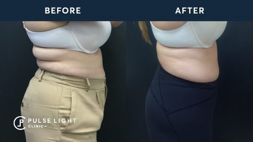 After 2 CoolSculpting treatments, with 4 applicators on love handles