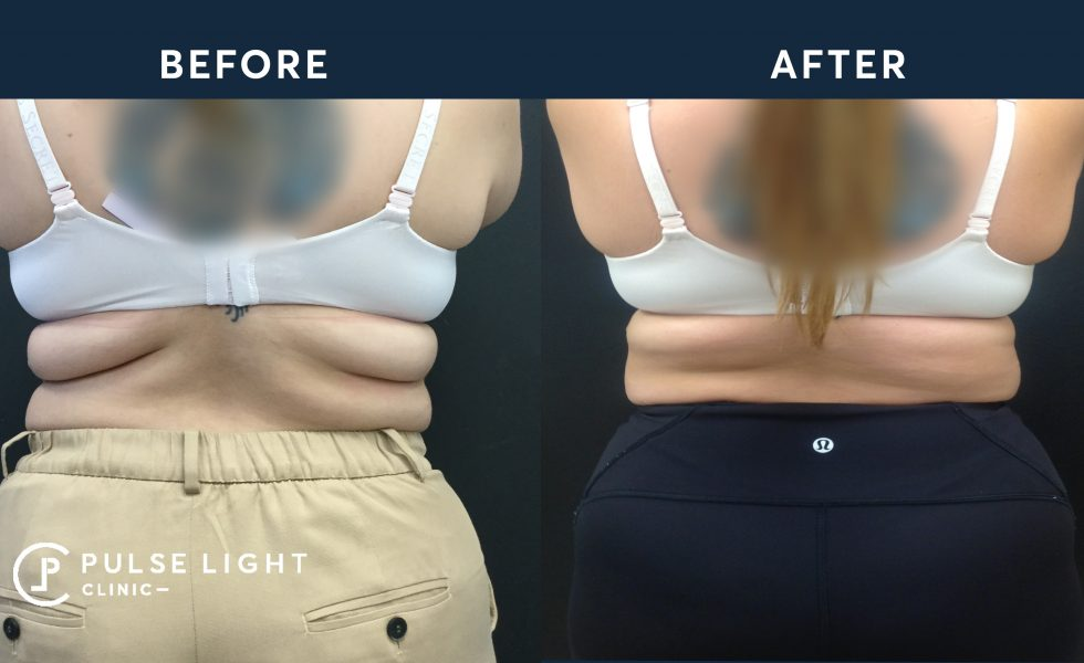 After CoolSculpting treatment for back fat