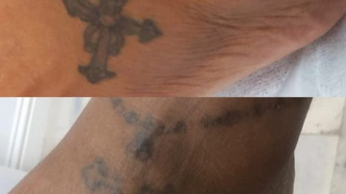 After 6 Laser Tattoo Removal Treatments
