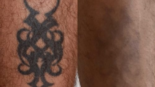 After 9 Laser Tattoo Removal treatments
