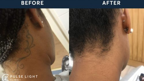 Dark Skin Before and After in Laser Tattoo Removal Clinic