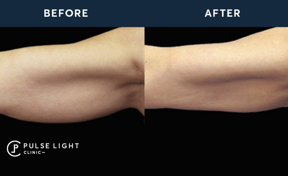 After 1 CoolSculpting Treatment Arm Fat