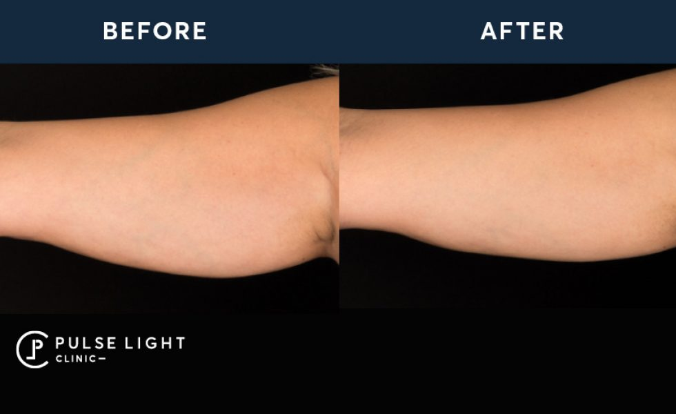 CoolSculpting Treatment for Arms