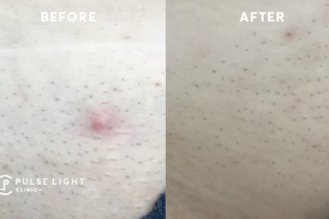 Ingrown hair before and after