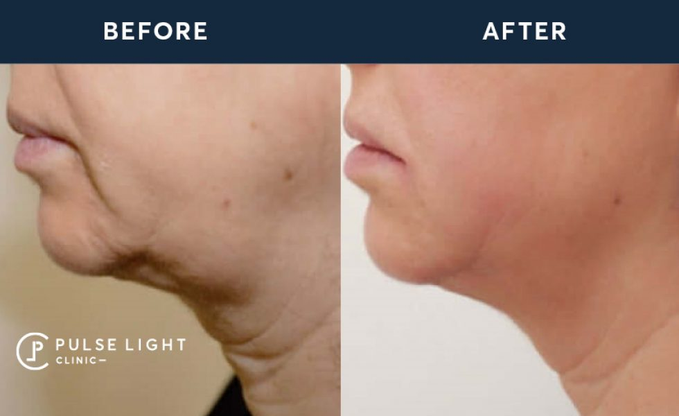 HIFU Chin Treatment