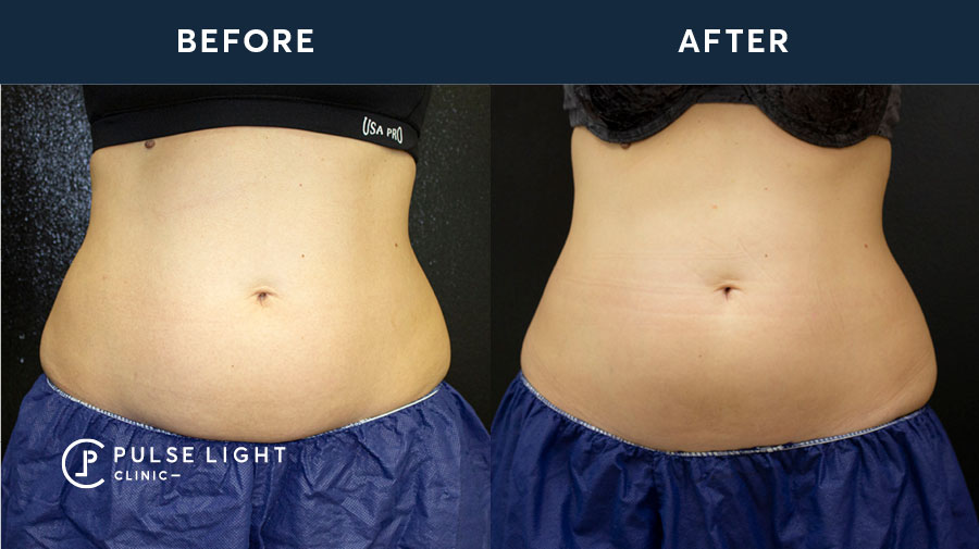 fat removal before and after