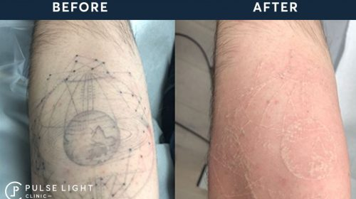 Laser Tattoo Removal Before and After