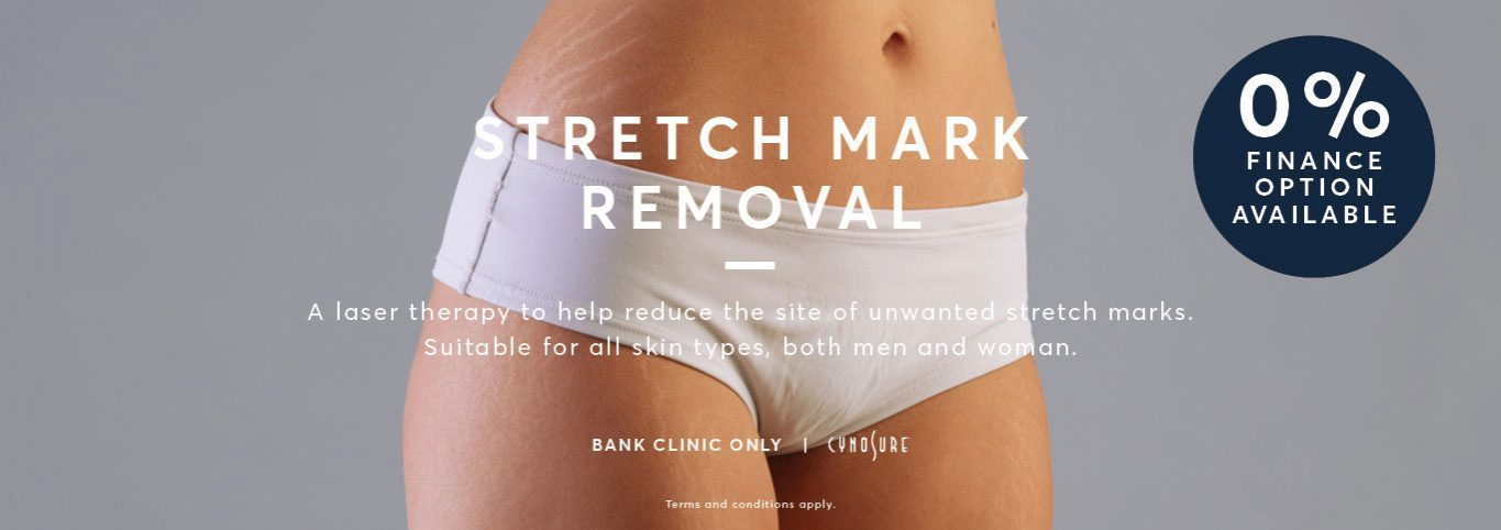 Stretch Mark Removal Graphic