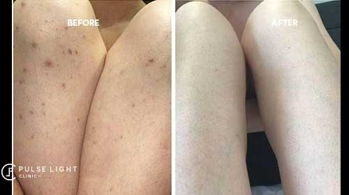 Before and after laser hair removal on a white lady's legs