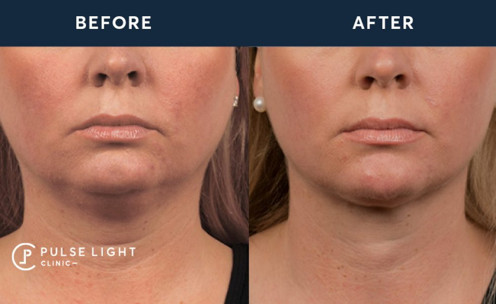 After 1 CoolSculpting treatment, with 3 Mini applicators on double chin