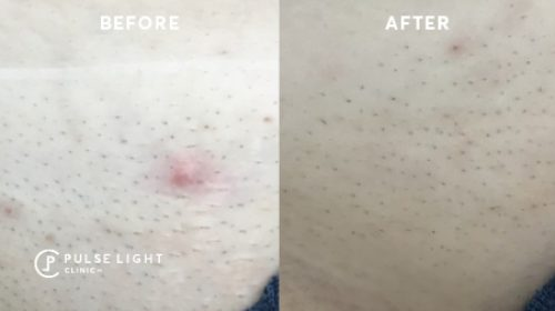 Before and after bikini laser hair removal