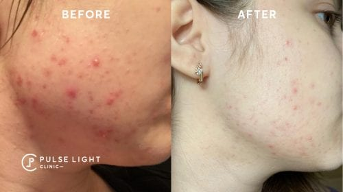Icon Acne Scar treatments