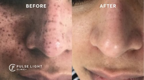 After PicoSure laser treatment