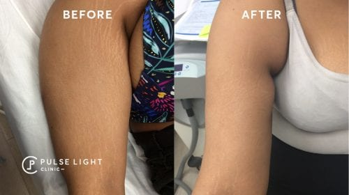 Dermapen Stretch Mark Removal Treatment