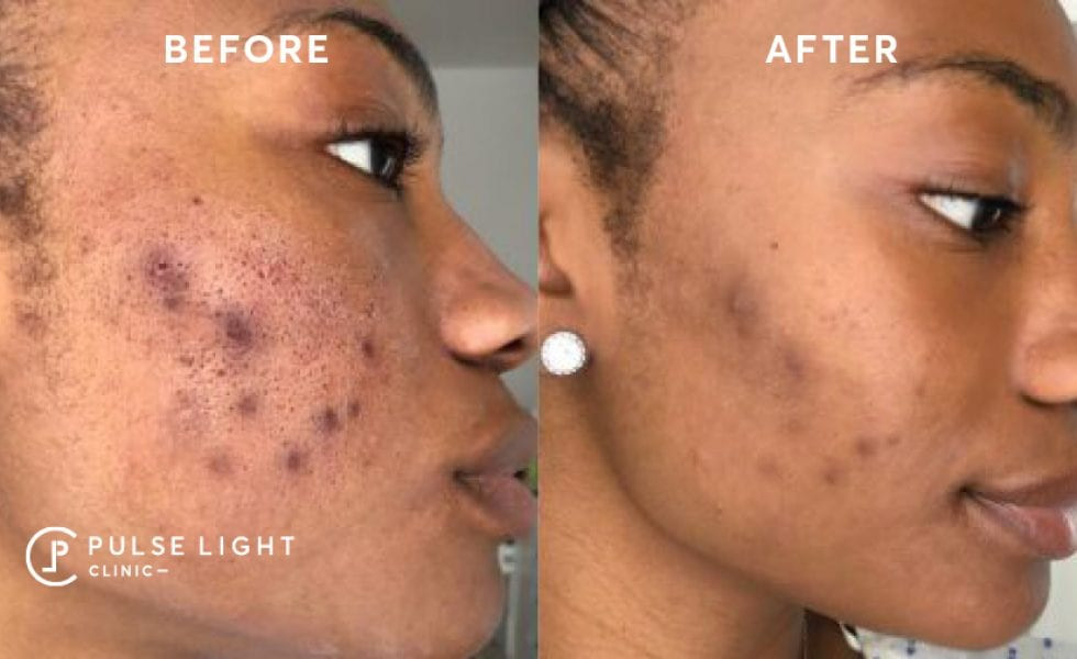 A dark lady's check demonstrating the results after a skin treatment