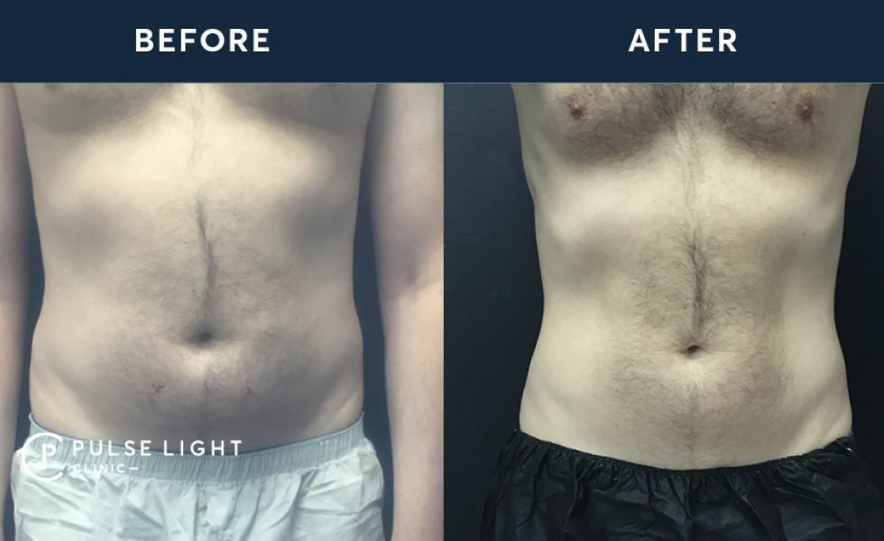 After 1 Fat Freezing / CoolSculpting treatment, with 4 applicators on the stomach