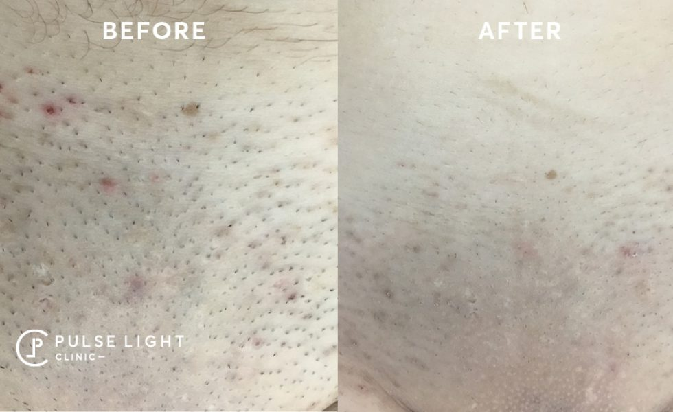 How Laser Hair Removal Works Pulse Light Clinic London