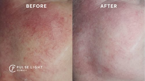 Face Rosacea Before and After
