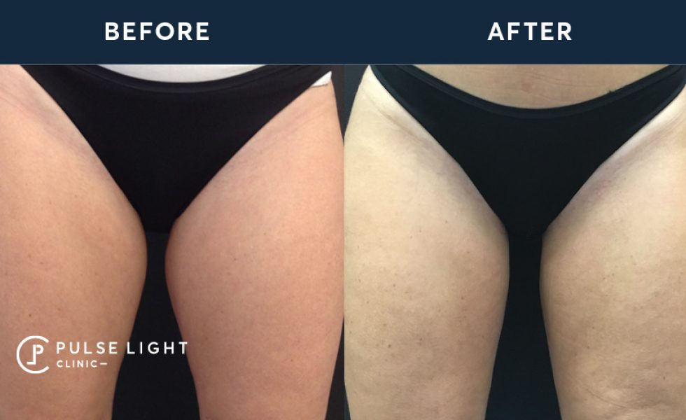 After CoolSculpting Inner Thighs Before and After