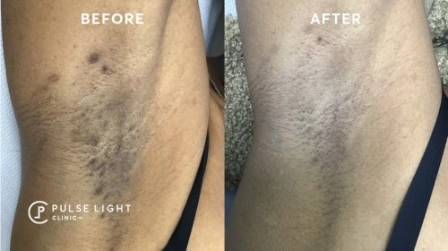 Armpit Ingrown hair before and after