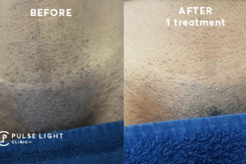 Before and after laser hair removal on a dark skin lady's bikini