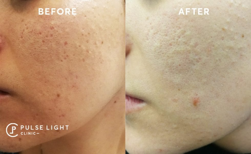 Acne Scar Removal Before and After