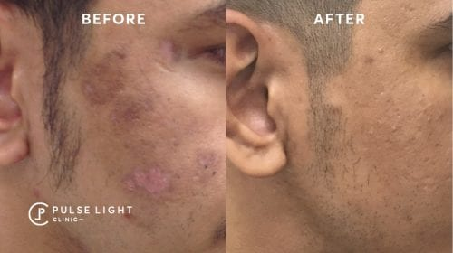 Melasma PicoSure laser treatments