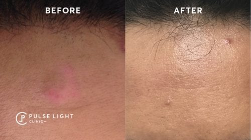 Melasma Pigmentation Laser Treatment
