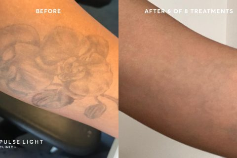 Client at Pulse Light Clinic's before and after getting tattoo removal