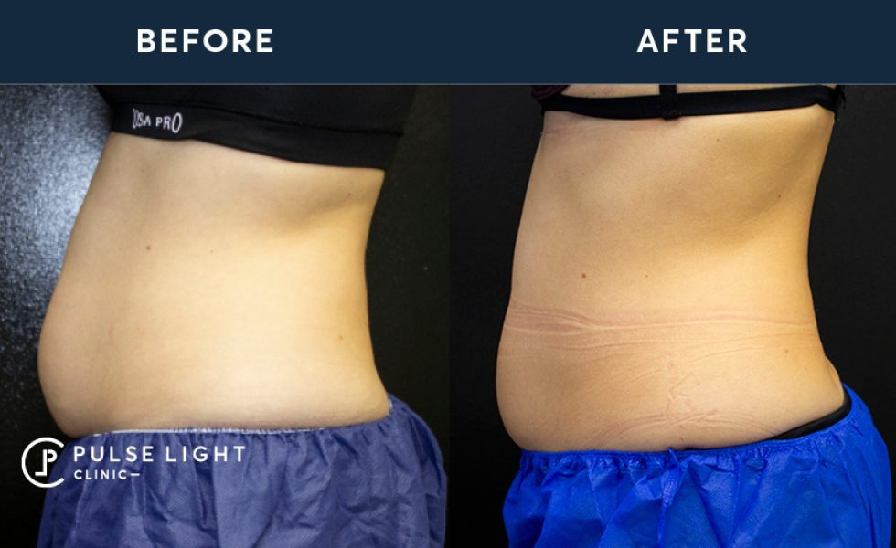 After 1 treatment on Abdomen using CoolSculpting