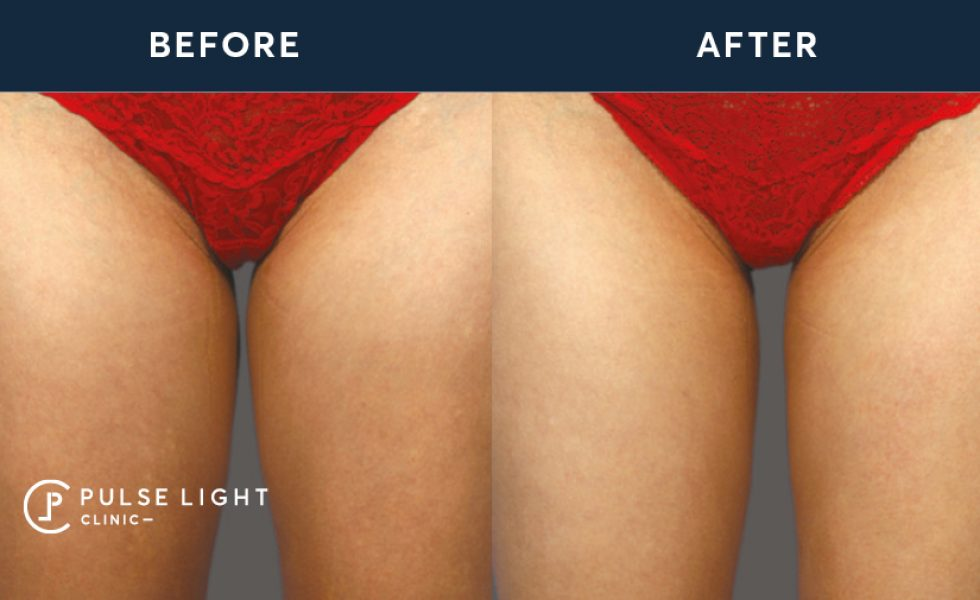 CoolSculpting before and after on inner thighs of client at Pulse Light Clinic